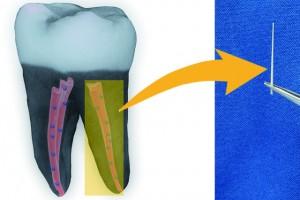 3D снимка на зъб, чиито коренови канали са запълнени с гутаперча с нанодиаманти. Снимка: American Chemical Society/Dong-Keun Lee/Science Daily