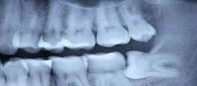 dentalno zdrave i mudrezi