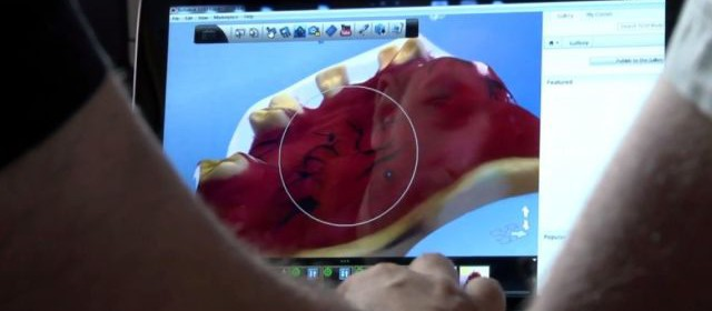 новите технологии в денталната медицина