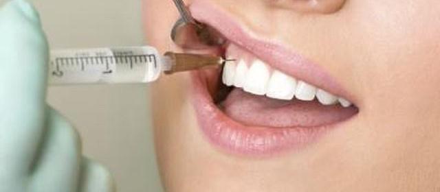 прилагане на анестезия при зъболечение