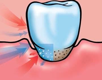 чувствителни зъби