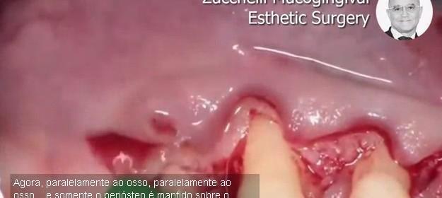 Видео: Мукогингивална естетична хирургия