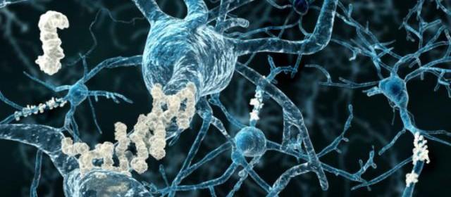 алцхаймер и дентално лечение