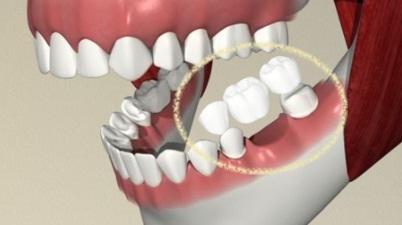 липсващи зъби?