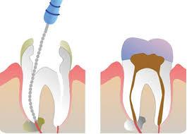 лечение на кореновите канали