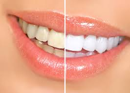 Оцветяване на зъбите